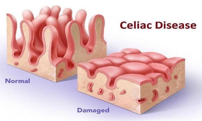 Studio Sitari Nutrizione - Celiachia la causa